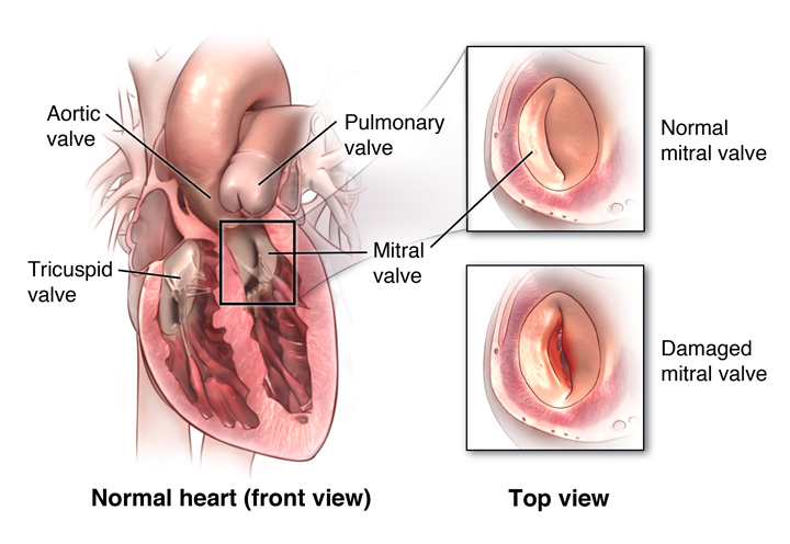 Mitral valve prolapse – Cardiology – VHC Physician Group